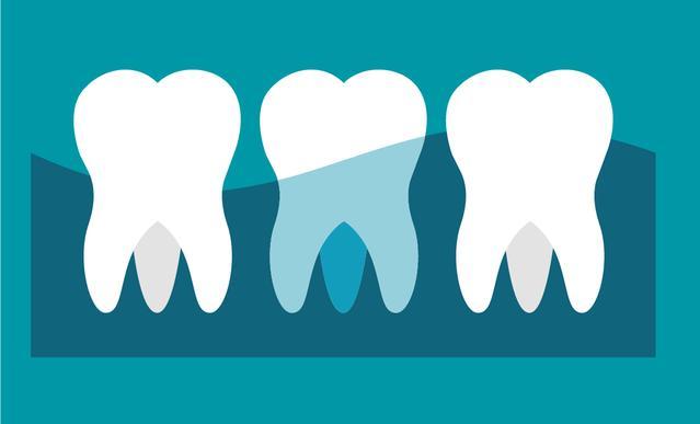 Ilustración de dientes